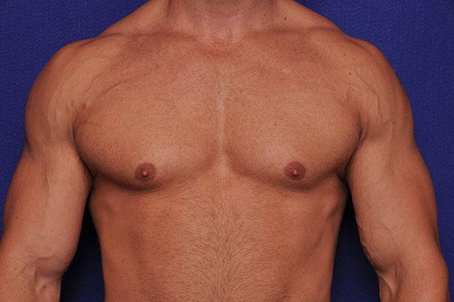 Men Gynecomastia Plastic Surgery Vero Beach, FL 32963
