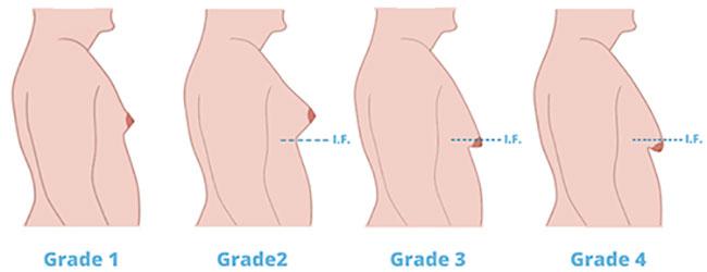 Grades of Gynecomastia